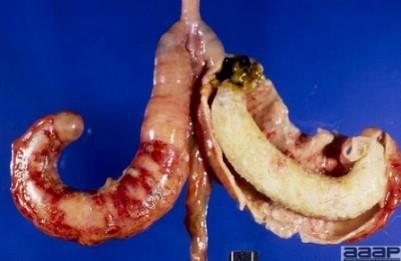 histomoniasis-blackhead-disease